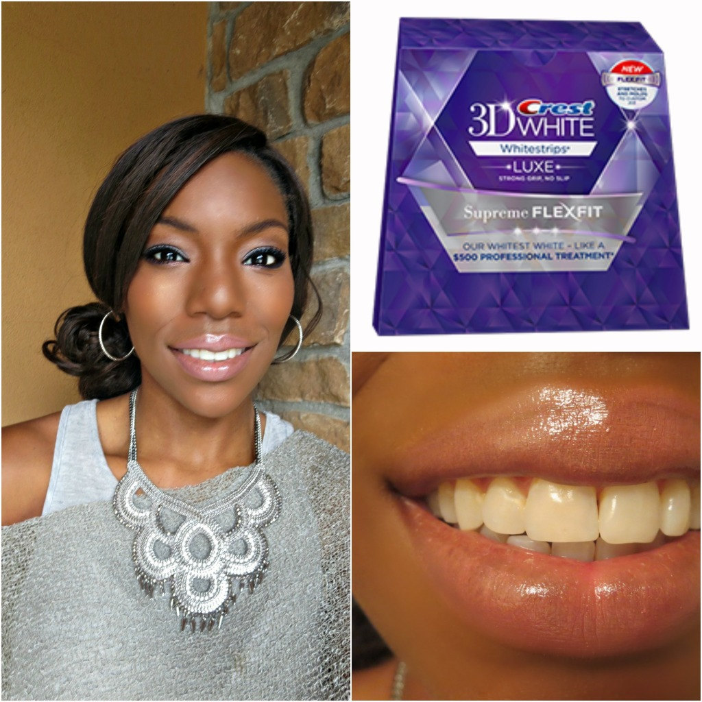 Two Weeks to My Whitest Smile + Giveaway
