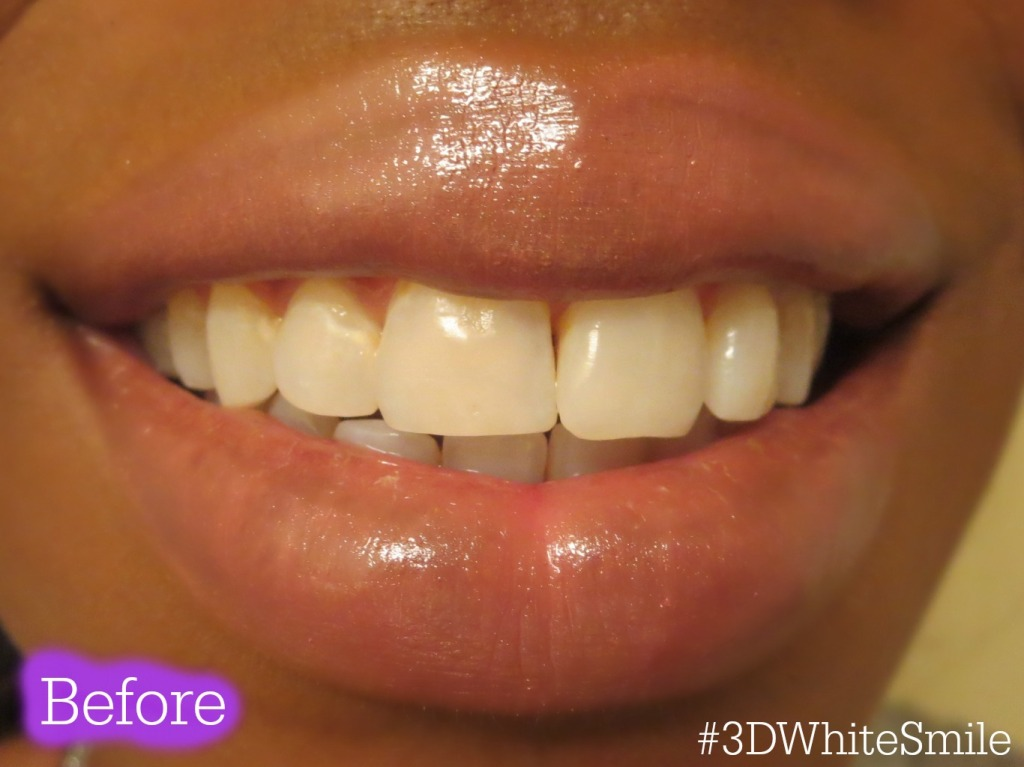 3DWhiteSmile before 3