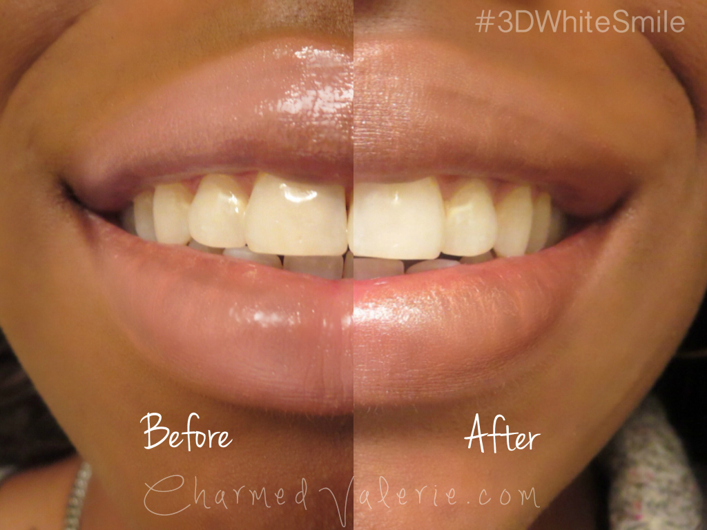 Crest 3D White Whitestrips before and after