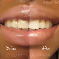 Crest 3D White Whitestrips BEFORE & AFTER #3DWhiteSmile